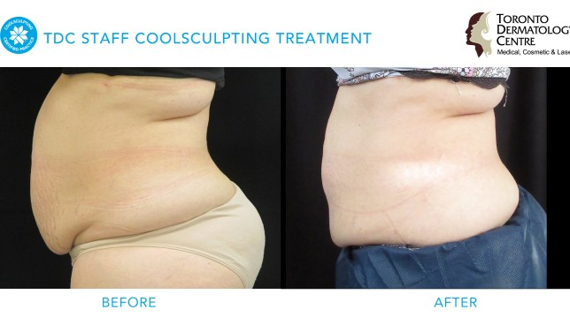 Toronto Dermatology Staff Coolsculpting before & after