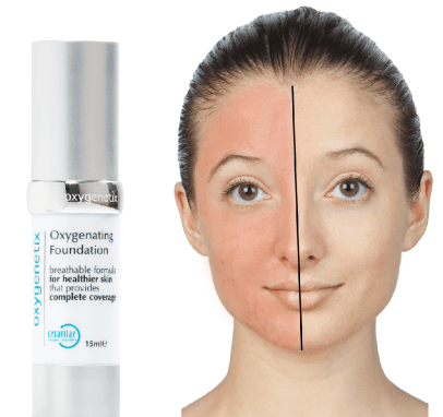 oxygenetix foundation before and after 1