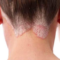 psoriasis_scalp