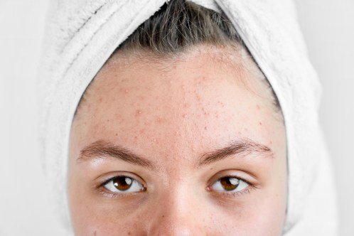 Girl after spa in white towel with acne problem skin puberty period problem