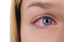 red eyes, pink eye