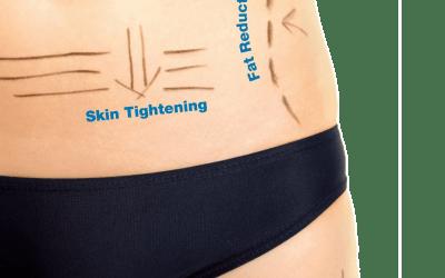 Spotlight on Body HIFU
