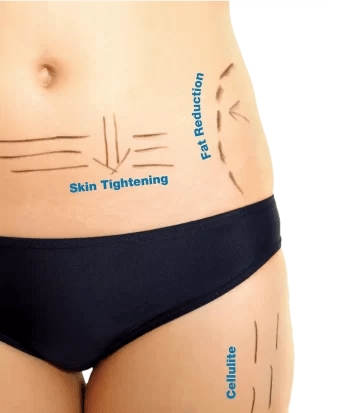 Spotlight on Body HIFU