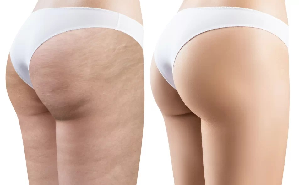 shockwave therapy before and after