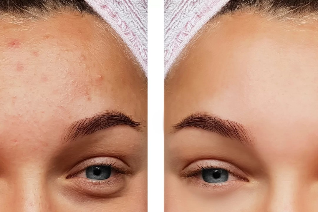 skin peel before and after