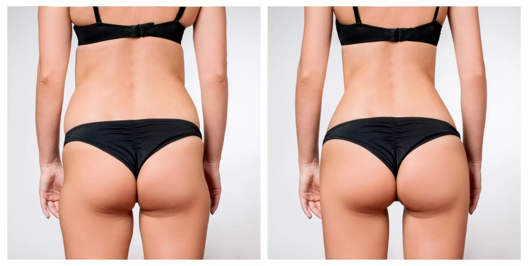 hifu bum lift before and after