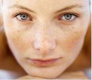 tratamiento para quitar manchas del rostro