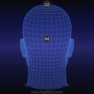 tDCS Electrode Montage - Depression Treatment Fp1-OzCz
