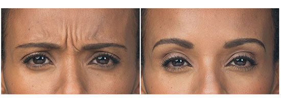 An image showing before and after Botox treatments