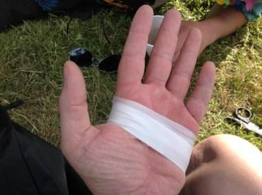 TOUGHEST 24H XTREME, Notdürftige Verarztung der rechten Hand