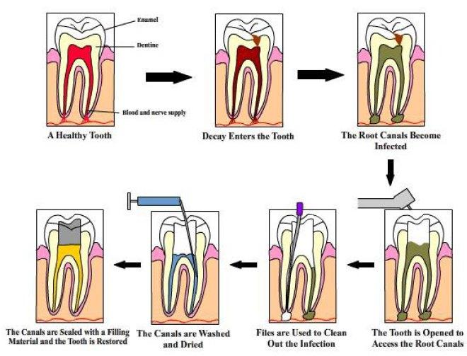 Dental Tourism India