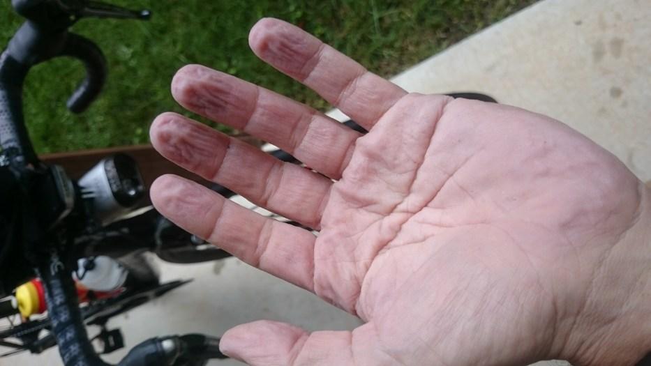Prune hands!