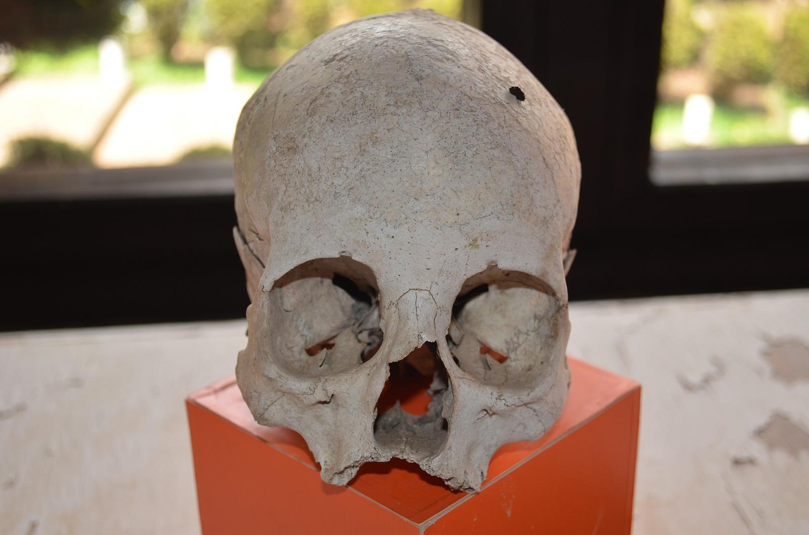 Des ossements humains découverts sur un chantier à Metz