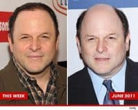 Jason-alexander-has-hair-now-17286-1316893804-3