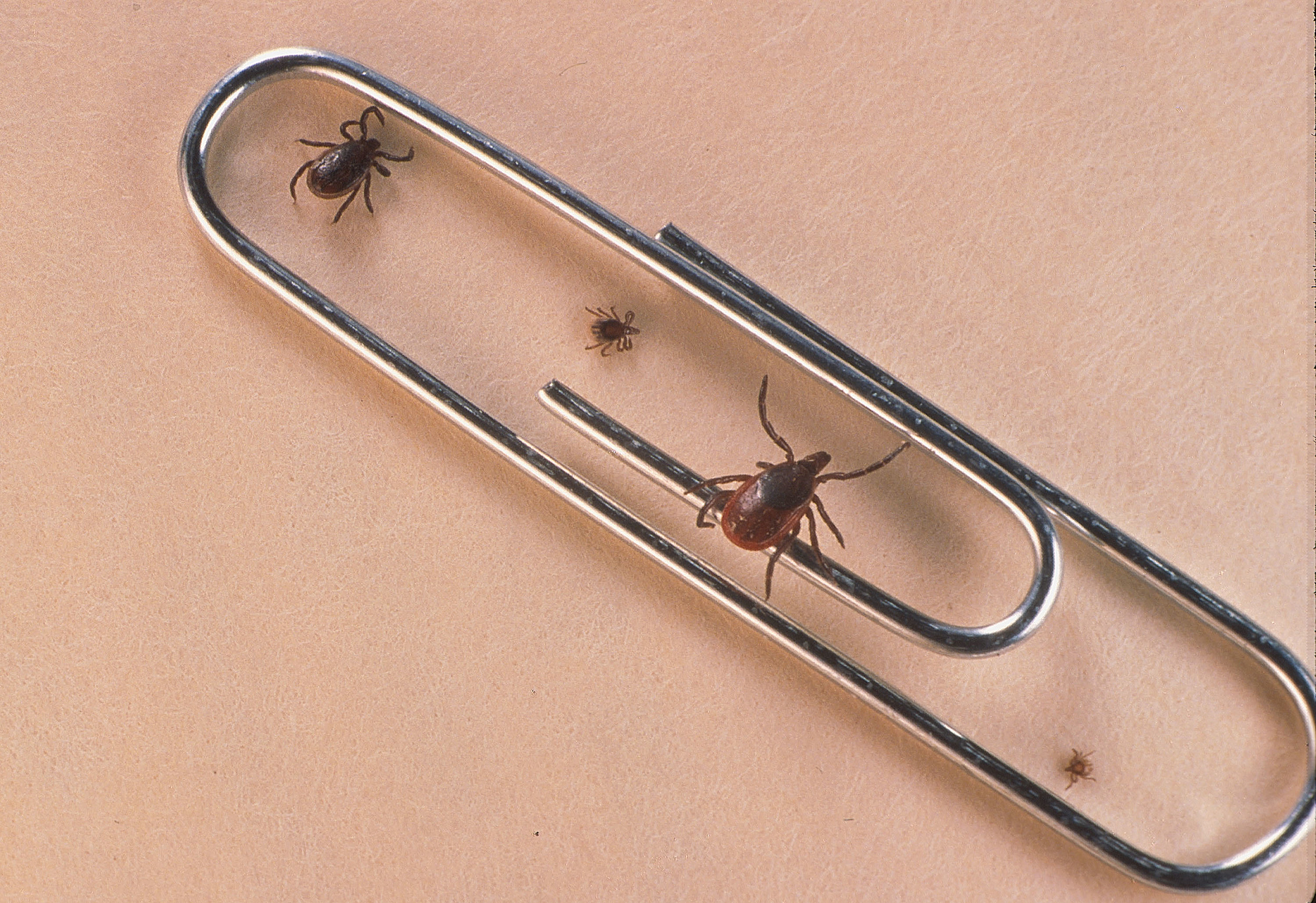 5 Easy Ways To Get Rid Of Ticks In Your Yard