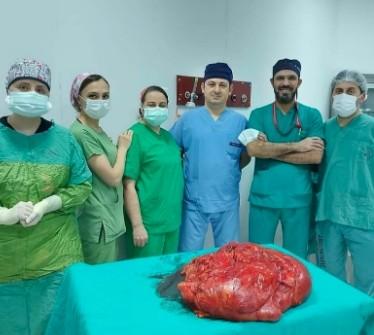 Trabzon'da ameliyata alınan hastanın karnından 21 kiloluk tümör çıkartıldı