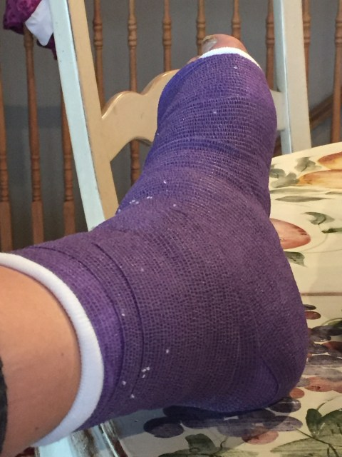 Put in a cast