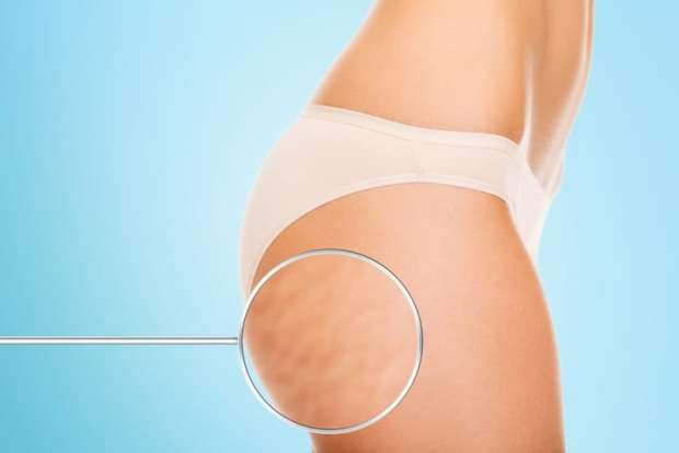 Is It Possible To Get Rid Of Your Cellulite Fast?