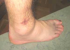 skadat ledband i foten