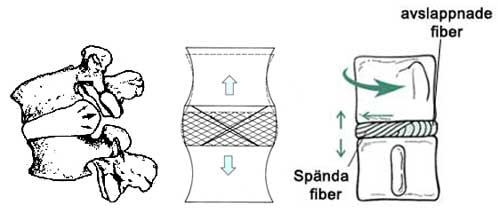 Figur 4: Flektion leder till att kärnan i disken pressas bakåt (vänster) samtidigt som de olika lagerna i fiberringen dras ut (mitten). Om man dessutom lägger till rotation kommer hälften utav fiberna att slappas med andra hälften spänns ytterligare (höger)