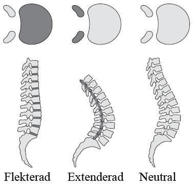 Olika former på ryggraden ger olika belastning på olika delar.