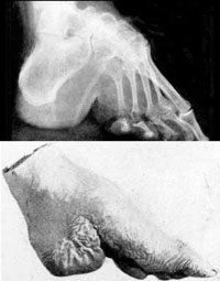 Utseendet av en fot som lindats i flera år