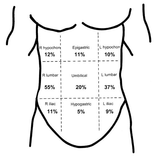 träningsvärk i magen utan träning