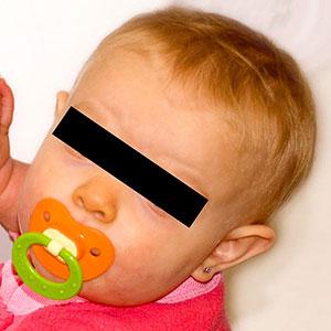 Ett barn med carotenosis - näsan har blivit gul/orange