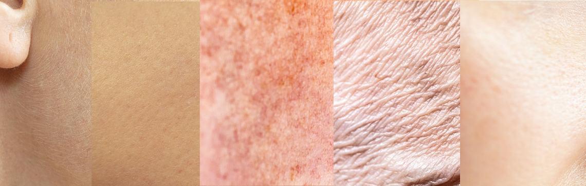 Skin Types Banner