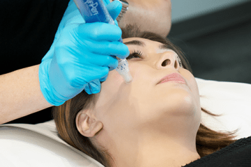 Microneedling utilizes tiny needle pricks to stimulate the skin's natural healing processes to improve skin texture, clarity and overall appearance of your skin