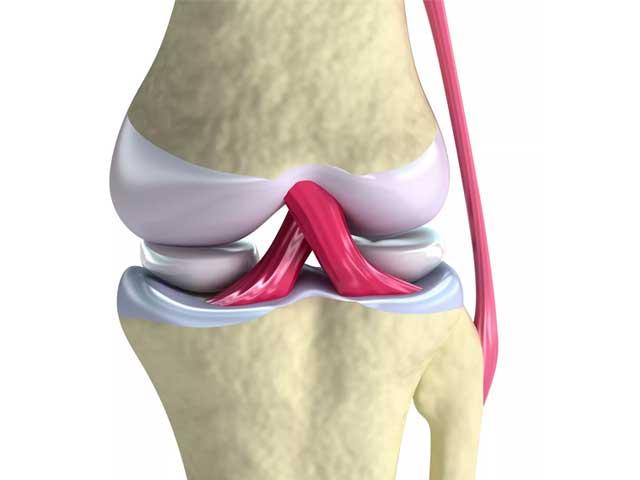Lesion de ligamento cruzado anterior
