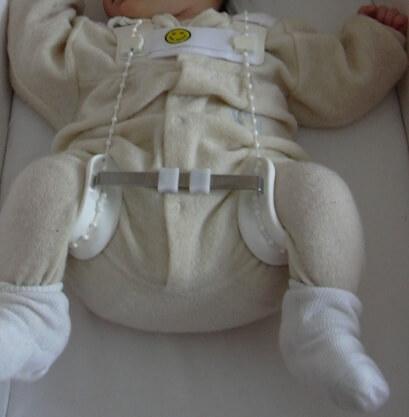 Bebé con arnés de Pavlik