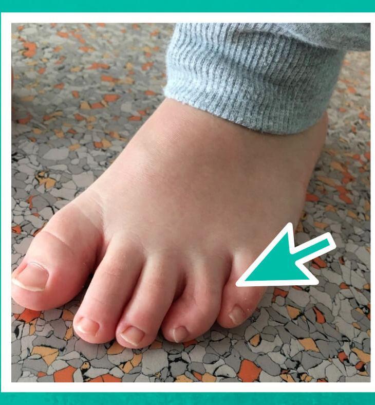 Dedos torcidos
