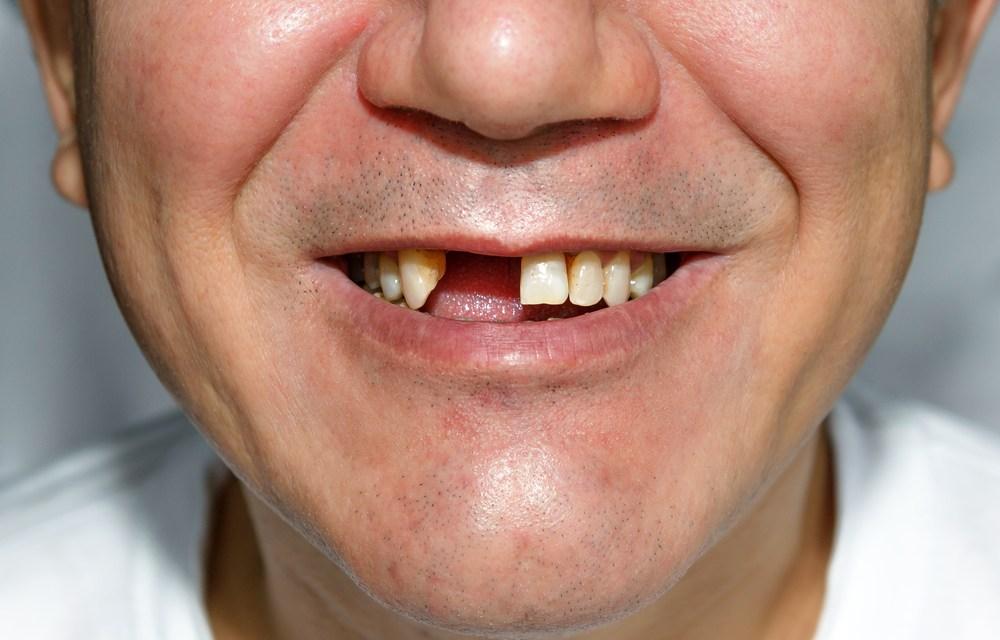 Ces 5 facteurs, qui accélèrent la perte de dents, vous feront reconsidérer vos habitudes