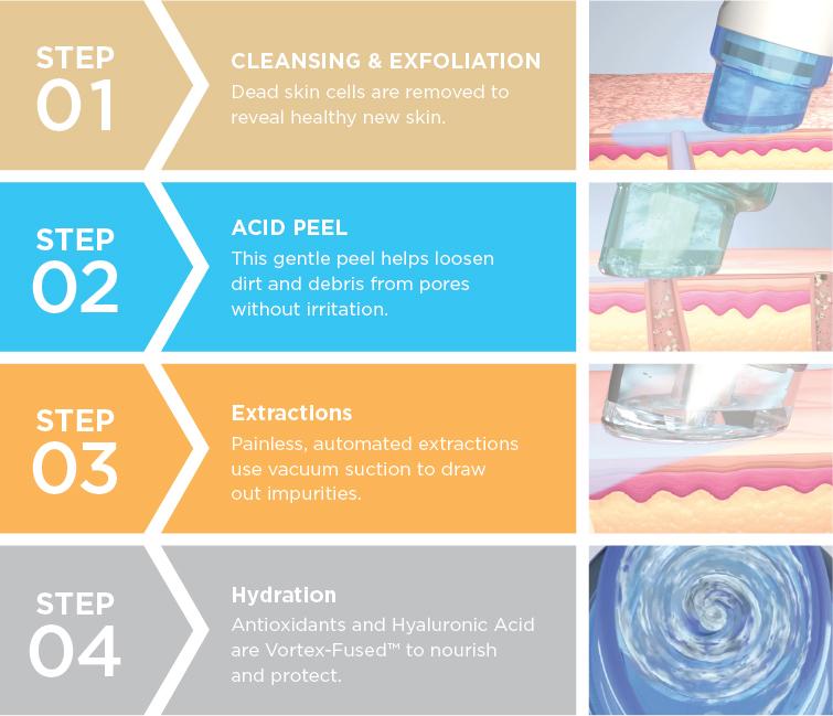 hydrafacial-4-steps