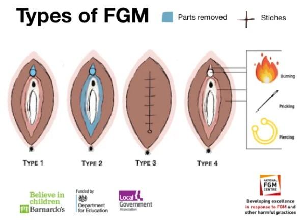 types of fgm diagram