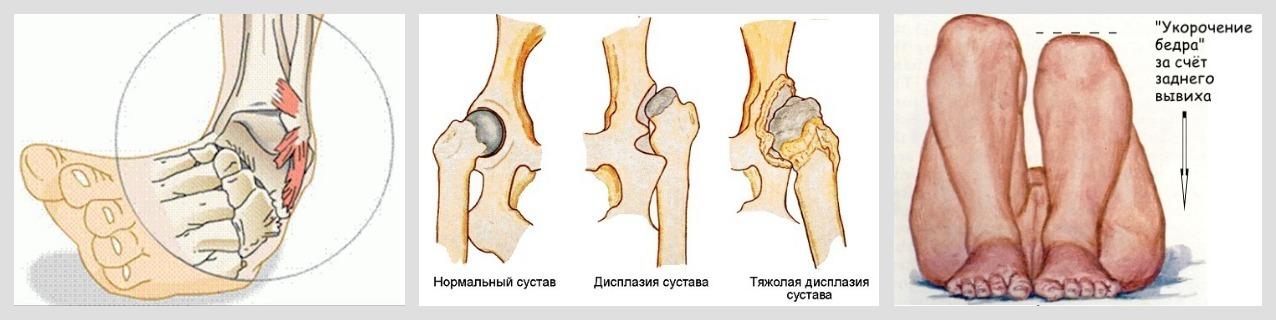 Подагра ног лечение народными средствами