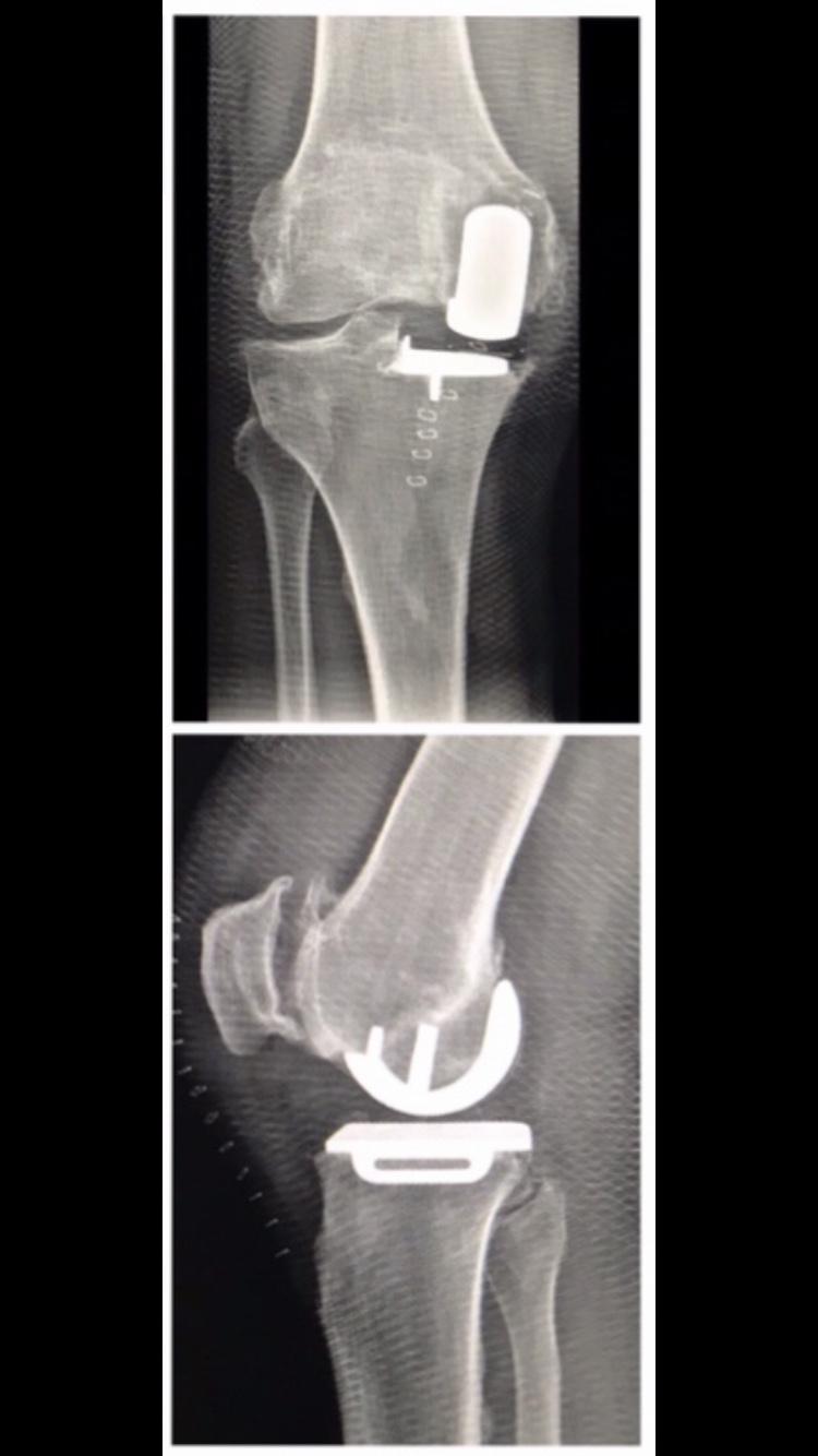Одномыщелковое эндопротезирование коленного сустава