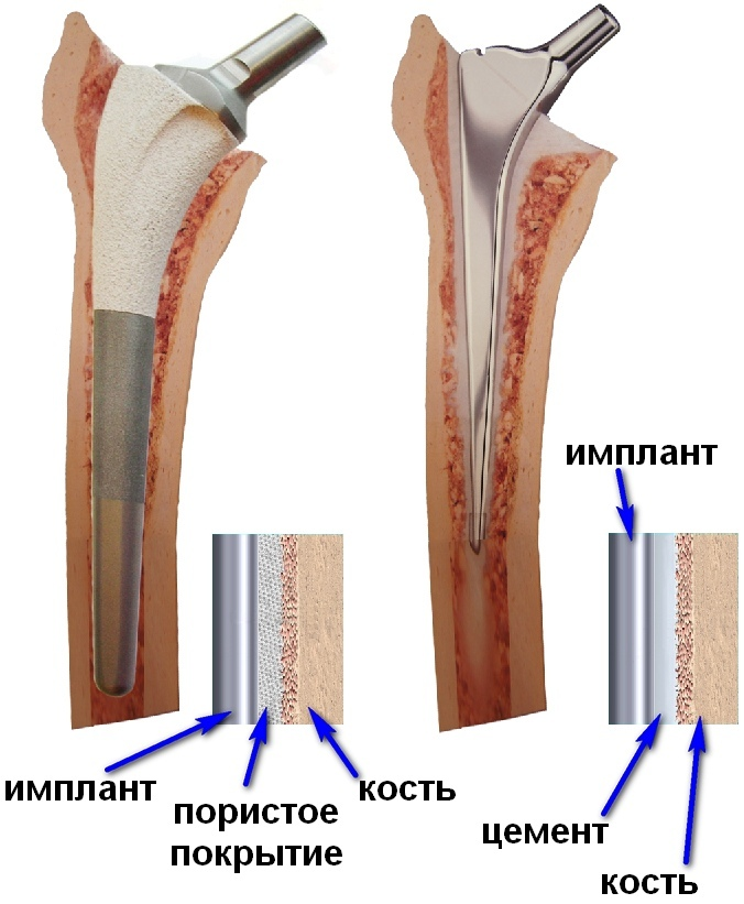 Цена протезирования тазобедренного сустава в украине блокада в коленные суставы