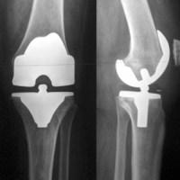 пример коленного сустава