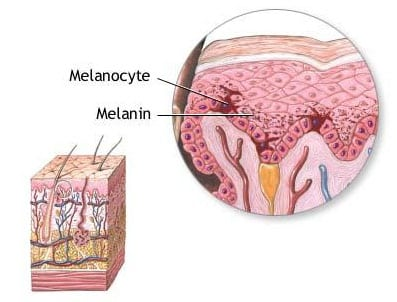 melanoma diagram