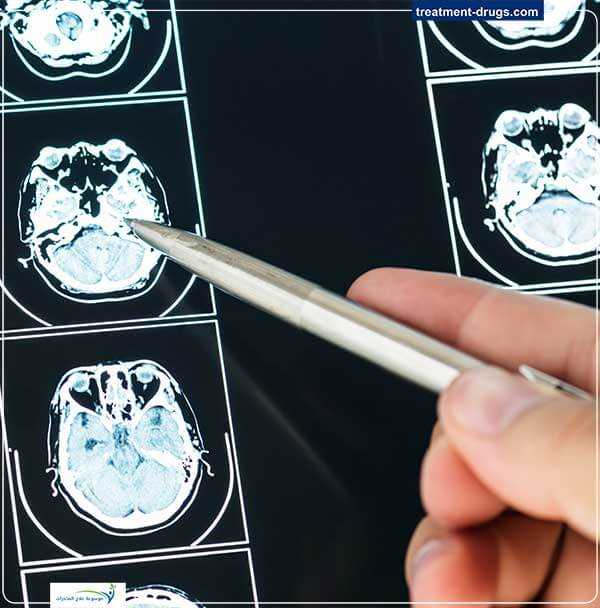 ما هي اضرار الكبتاجون على العقل؟
