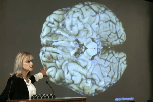 Ann McKee, director of Boston University's center for research of degenerative brain disease chronic traumatic encephalopathy, addresses an audience in 2017