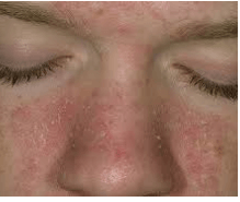 dry patches on face