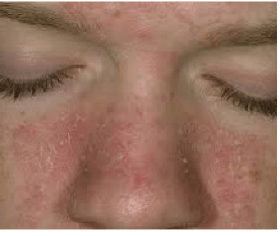dry patches on skin not itchy remedy
