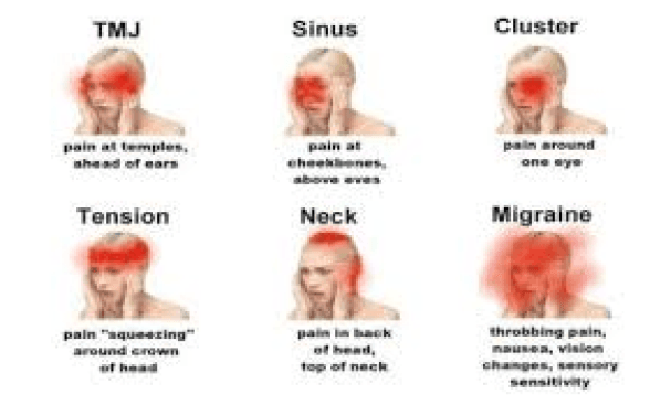 Sharp Pain in Head |Comes & Goes, Left, Right Side, When