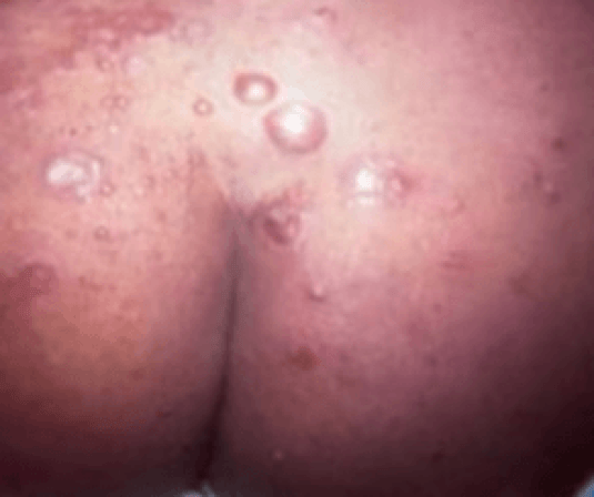 painful bumps on buttocks