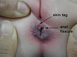 Perianal skin tag removal naked