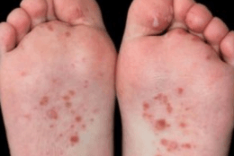 Bottom of feet itchy