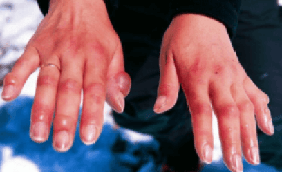 Home Remedies For Blood Clot In Finger